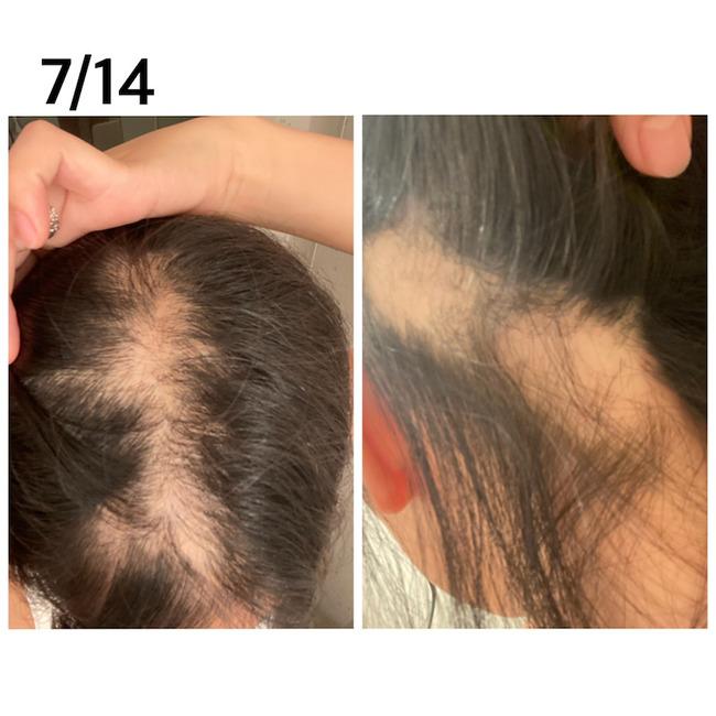 新型コロナ コロナワクチン 接種 女性 ハゲ 脱毛症に関連した画像-04