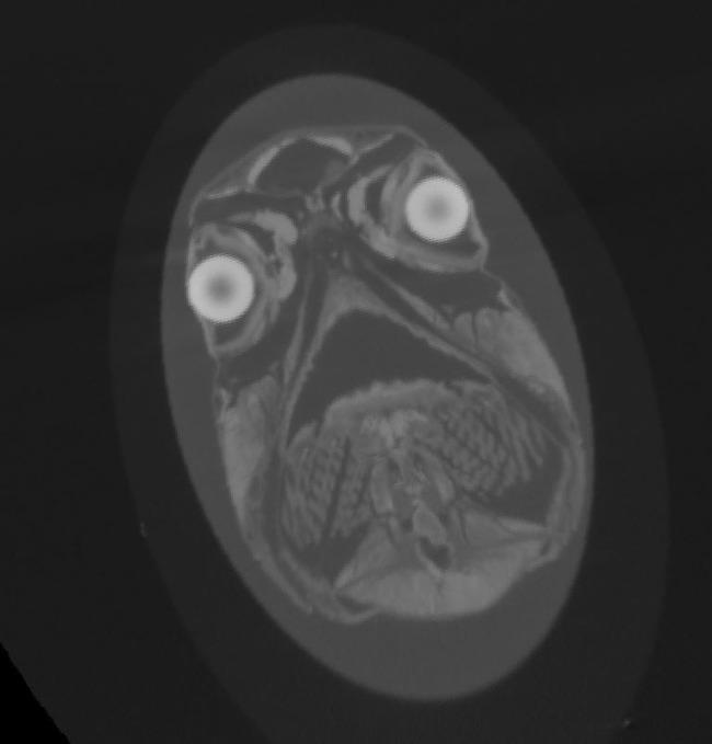 パグ MRI写真 衝撃に関連した画像-05