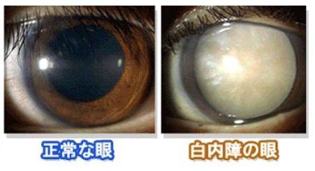 白内障 点眼薬に関連した画像-01