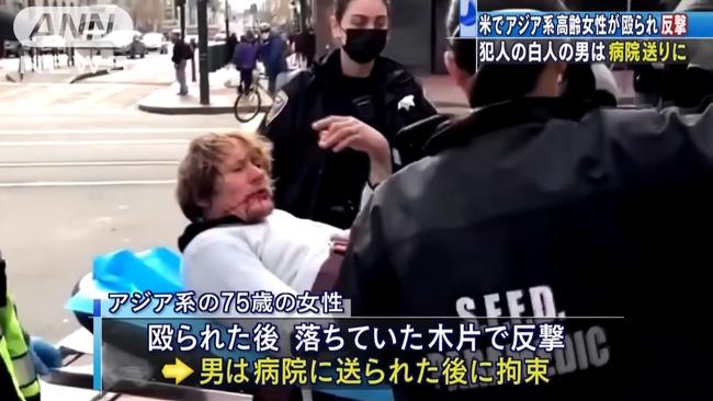 アメリカ 男性 アジア系 老婆 75歳女性 顔面殴打 反撃に関連した画像-04