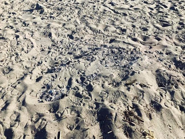 北海道 BBQ 海岸 砂浜 炭 放置 子供 火傷に関連した画像-05