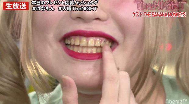 THEBANANAMONKEYS 天下のちゃんゆき 歯 矢口真里に関連した画像-04