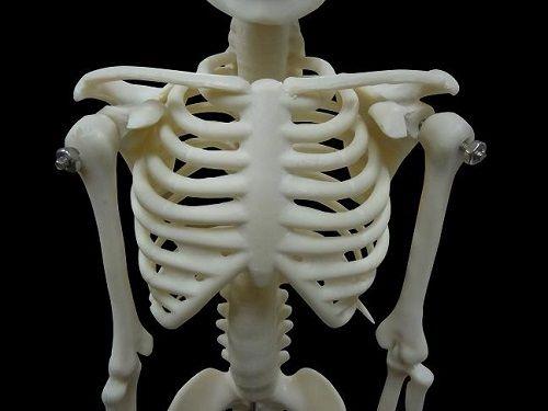 3Dプリンタ 肋骨 病気 スペイン オーストラリア 胸壁腫瘍 チタン インプラントに関連した画像-01