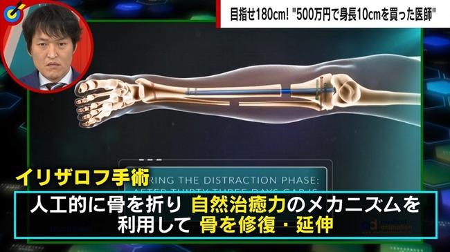 身長 整形外科医 太もも スネ 高身長 500万に関連した画像-03