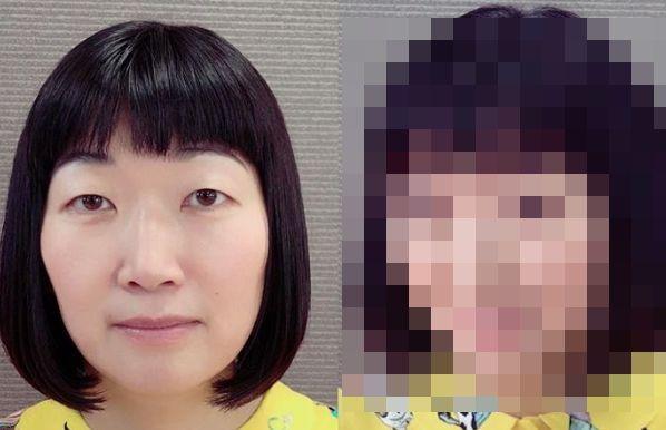 たんぽぽの川村エミコさん、重たい一重をがっつり二重にした結果、マジで美人になるwwwww