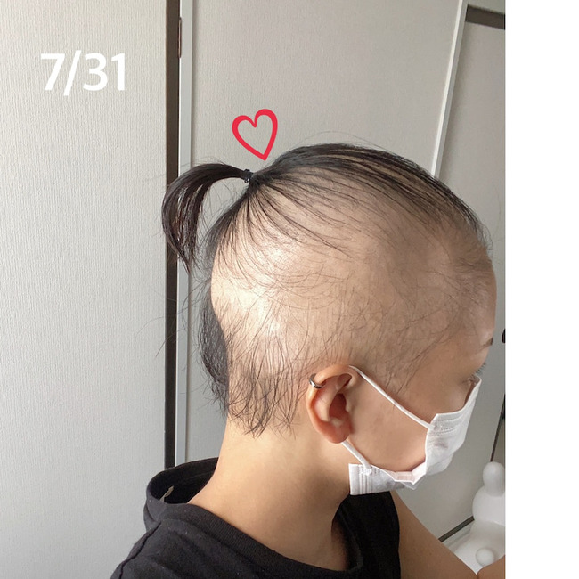 新型コロナ コロナワクチン 接種 女性 ハゲ 脱毛症に関連した画像-08