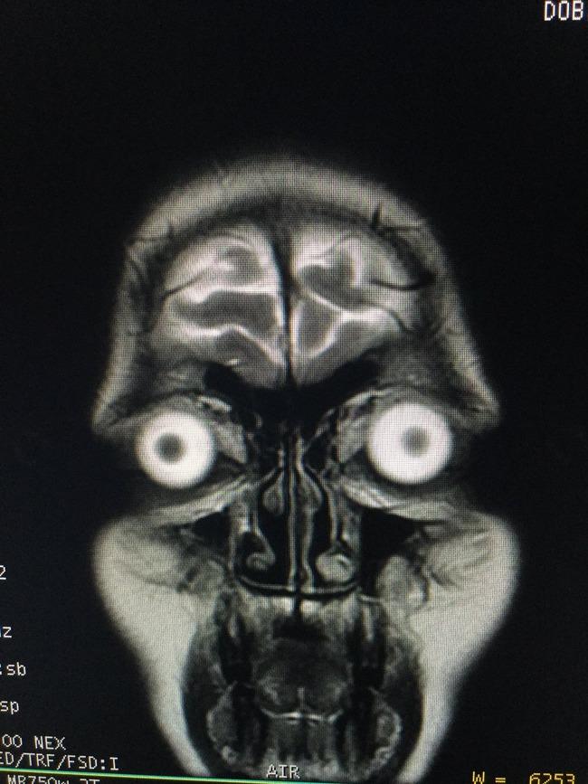 パグ MRI写真 衝撃に関連した画像-06