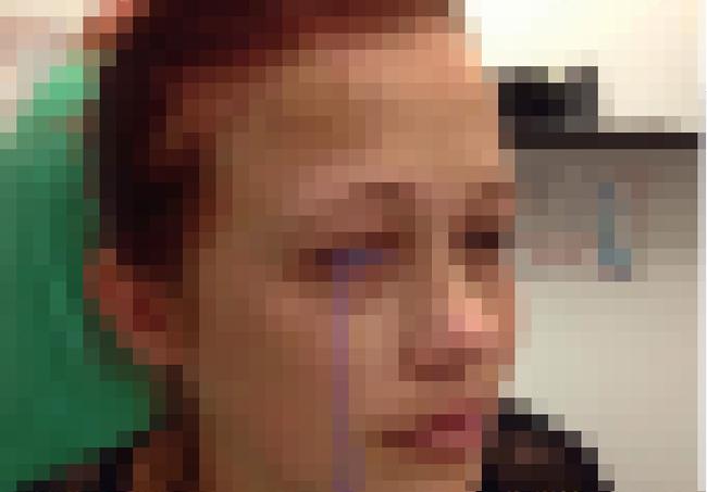 眼球 タトゥー 失敗に関連した画像-01