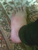 痛風 足の甲