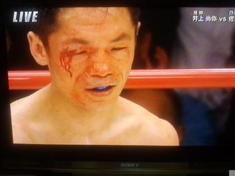 ボクシング 佐野友樹