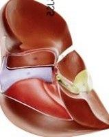 肝臓模型ー1
