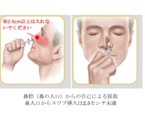 PCR鼻腔頭1