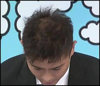 【目撃】山口達也…TOKIOを辞めて半年で髪の毛と頭皮が悲惨な姿に!!!!!?