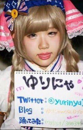【素人画像】整形を繰り返した18歳女子高生、目がかなりキモいことになってる!