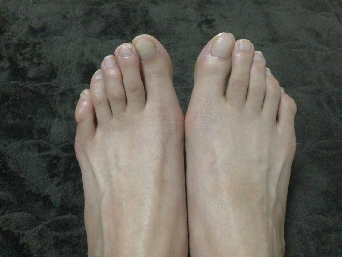 右足、親指の間斜めになって ...