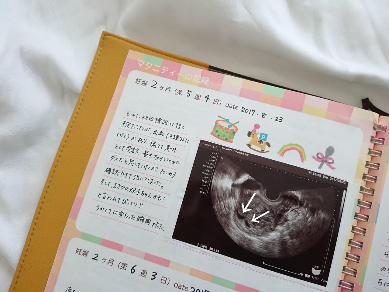 腹部 なし 妊娠 痛 出血 初期 下