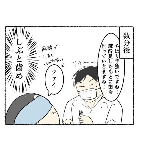 抜歯レポ3_005
