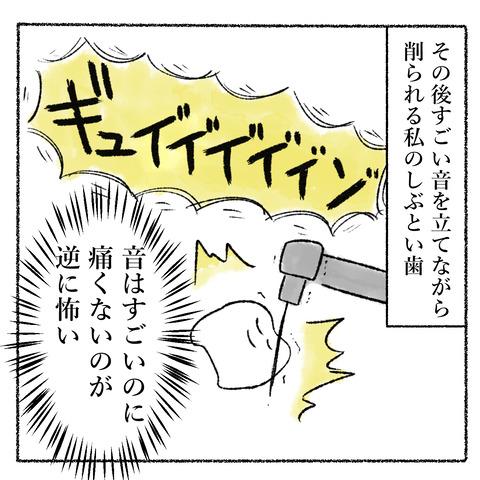 抜歯レポ3_006