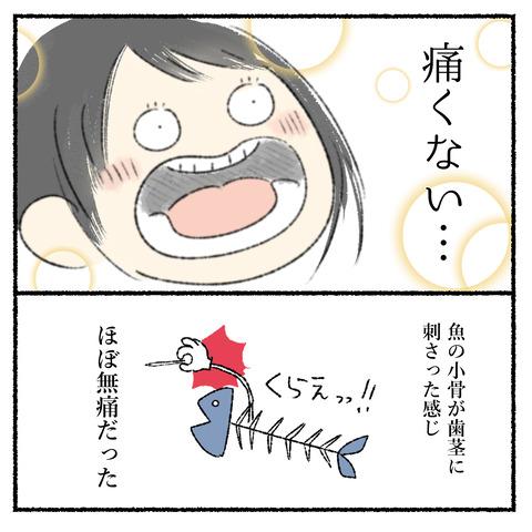抜歯レポ2_006