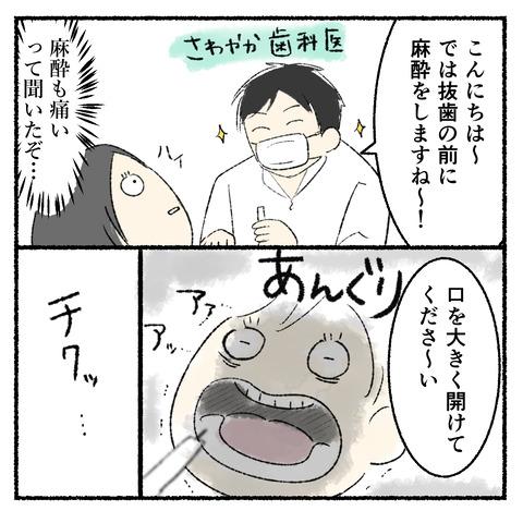 抜歯レポ2_005