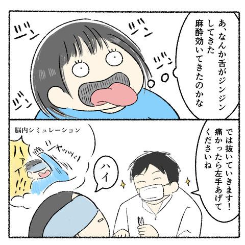 抜歯レポ3_002