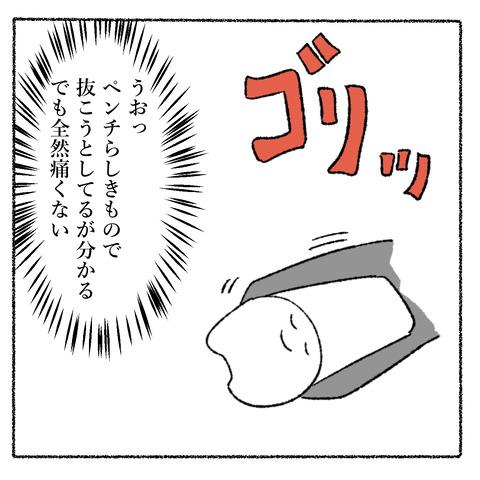抜歯レポ3_003