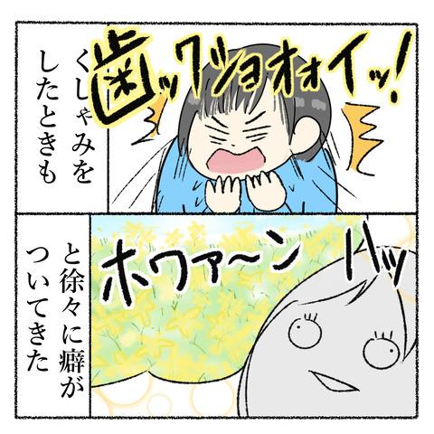 抜歯レポ_006