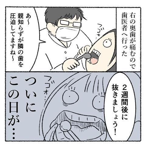 抜歯レポ_002