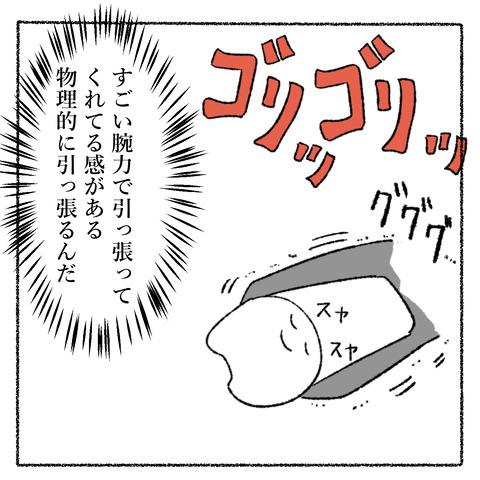 抜歯レポ3_004