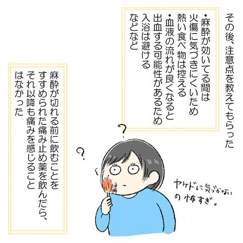 抜歯レポ4_005