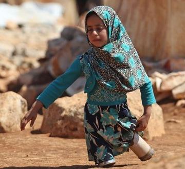 空き缶の義足の少女