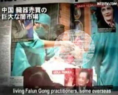 中国 臓器売買の巨大な闇市場
