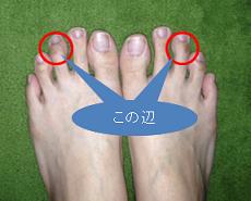 ハンマートゥ私の足指