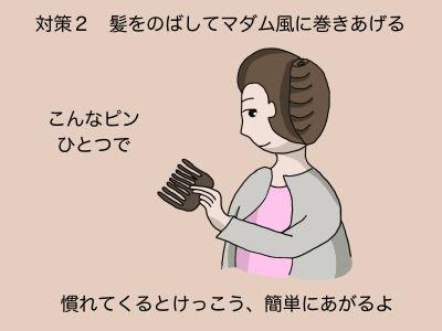 対策2 髪をのばしてマダム風に巻き上げる こんなピンひとつで 慣れてくるとけっこう、簡単にあがるよ