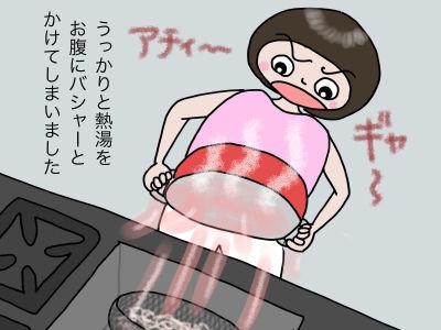 うっかりと熱湯をお腹にバシャーとかけてしまいました