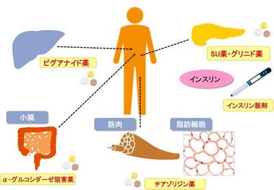 日本腎臓学会発作成の診療ガイドライン:|一般社 …