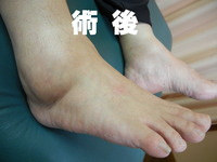 2015_0618_前田政子02_ブログ使用
