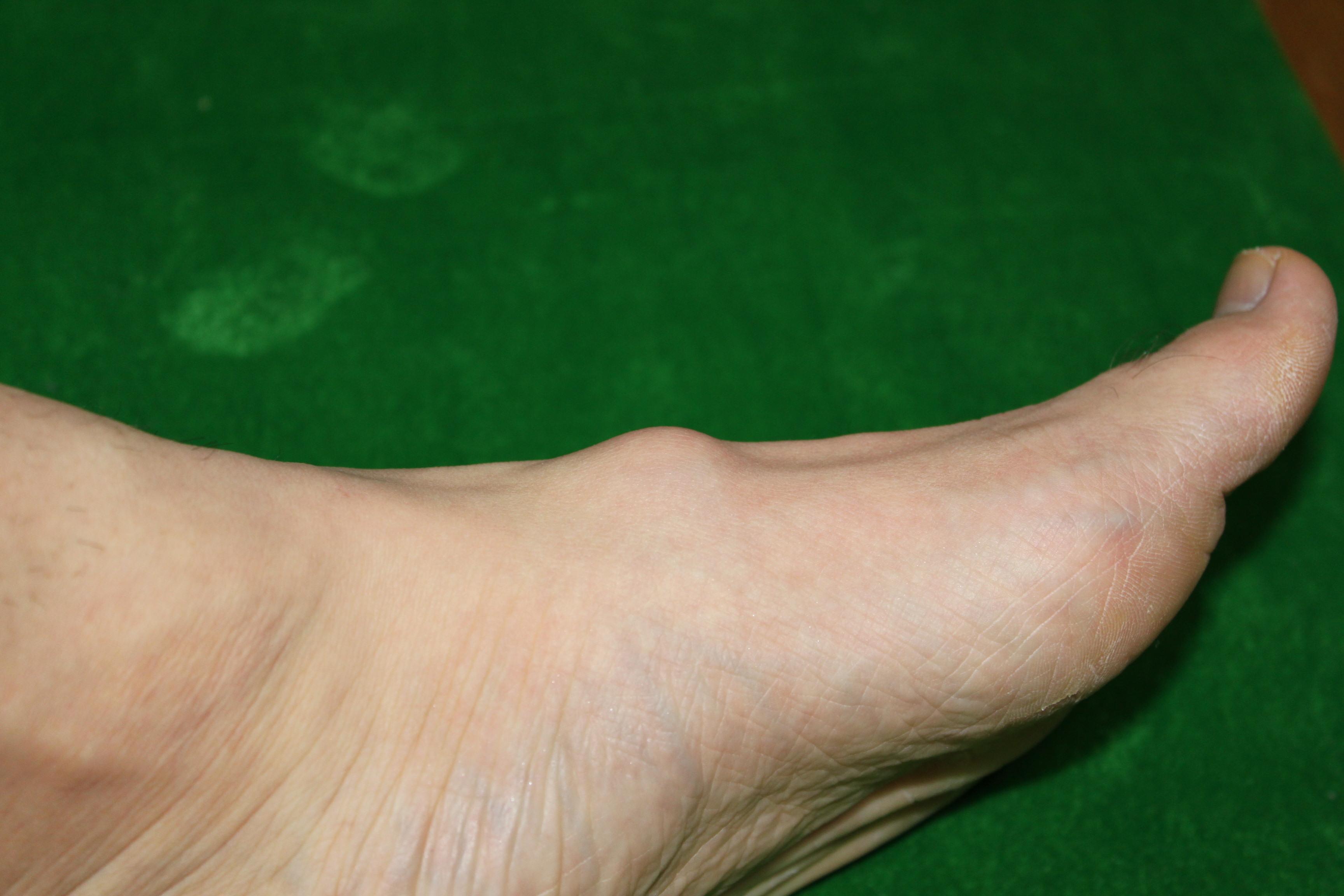 足の甲の部分がボコっと膨れてます。これがそう