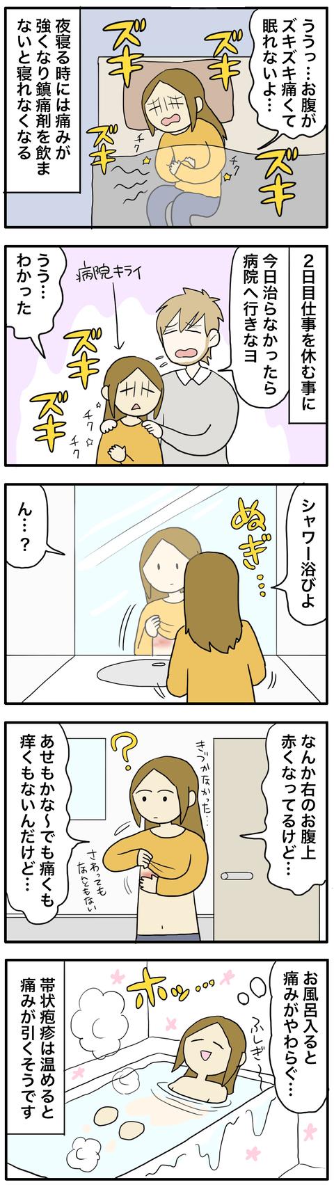 帯状疱疹2