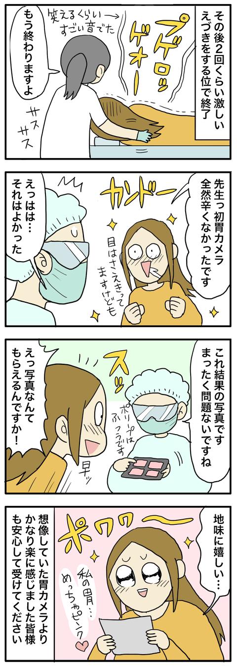 胃カメラ1 う