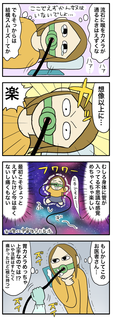 胃カメラ13