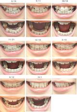 歯列矯正経過写真(1年1ヶ月)