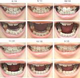 歯列矯正経過写真(7ヶ月経過)