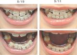 歯列矯正経過写真