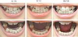 歯列矯正経過写真(2ヶ月経過)