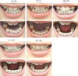 歯列矯正経過写真(4ヶ月経過)