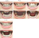 歯列矯正経過写真(3ヶ月経過)