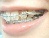 歯列矯正ゴムかけ