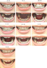歯列矯正経過写真(1年経過)