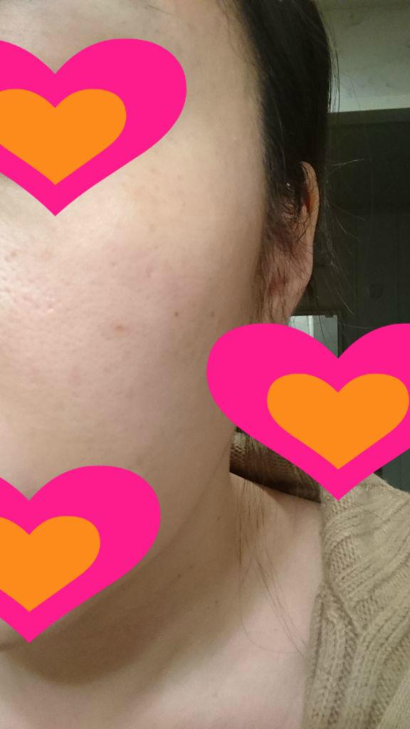 肝斑1ヵ月